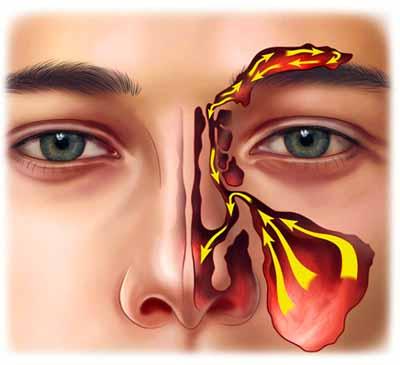 endoskopowa operacja zatok przynosowych fess polipy nosa opracja gdansk gdynia sopot szpital 1dayclinic