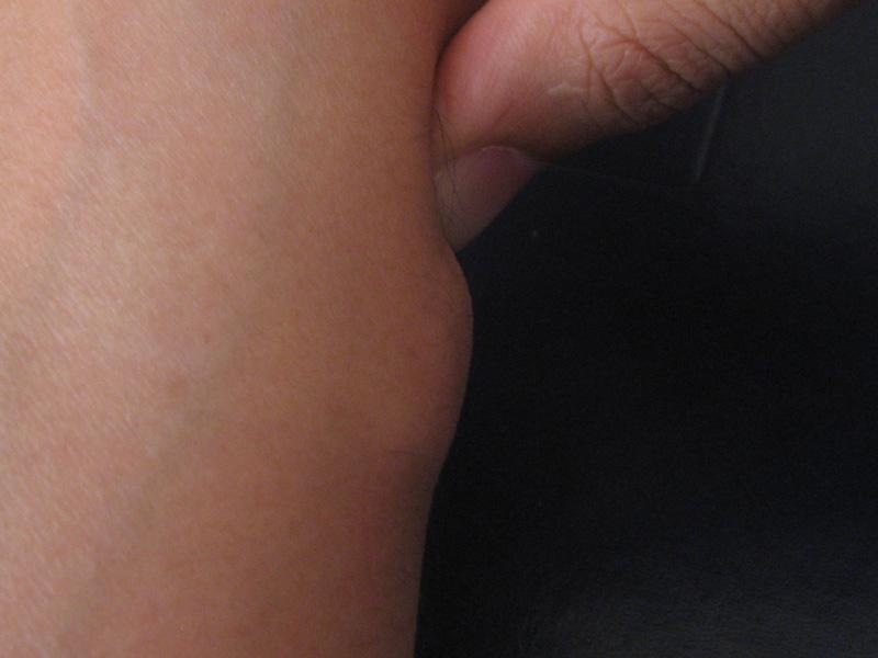 Usunięcie guza tkanek miękkich tłuszczak szpital 1dayclinic gdańsk trójmiasto gdynia sopot